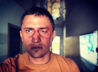 «Мажора» Прилучного избил боксер-бизнесмен