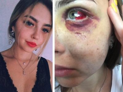 Красавицу-пианистку жестоко избили под Бугринским мостом