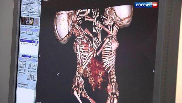 Сиамских близнецов из Новосибирска разделили столичные хирурги (видео)