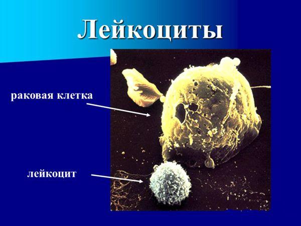 Новосибирские ученые нашли новый способ борьбы с раком